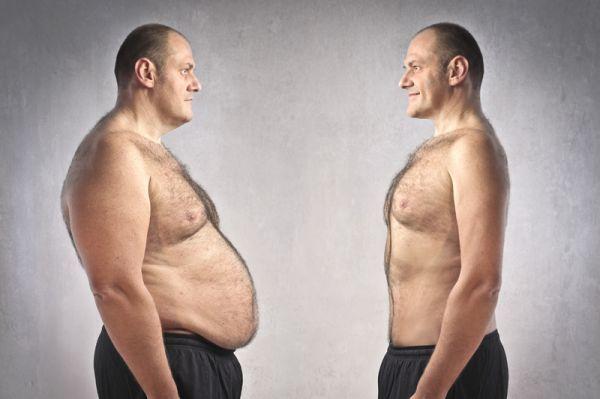 Obezita spôsobená chorobou