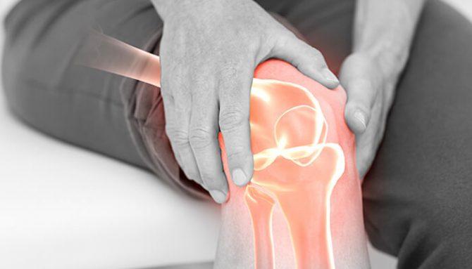 Artróza – ako jej nepodľahnúť! Pár krokov k jej prevencií