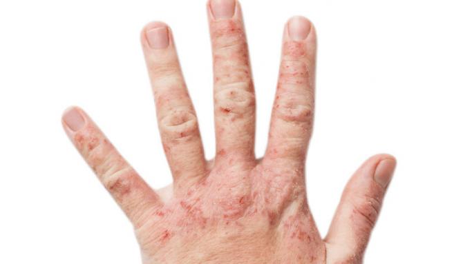 Ekzém, príčiny a liečba