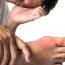 Ako liečiť dnavý záchvat?