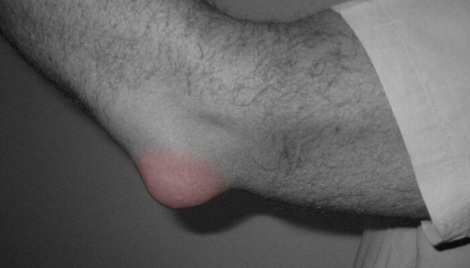 Burzitída – zápal mazového vačku