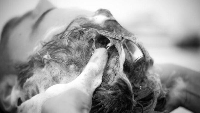 Ako si vybrať šampón na seboreu vo vlasoch?