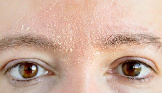 Čo musíte vedieť o zime, ak máte kožné problémy?